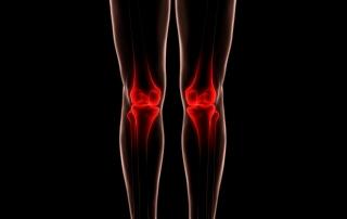 Osteoarthritis blog picture