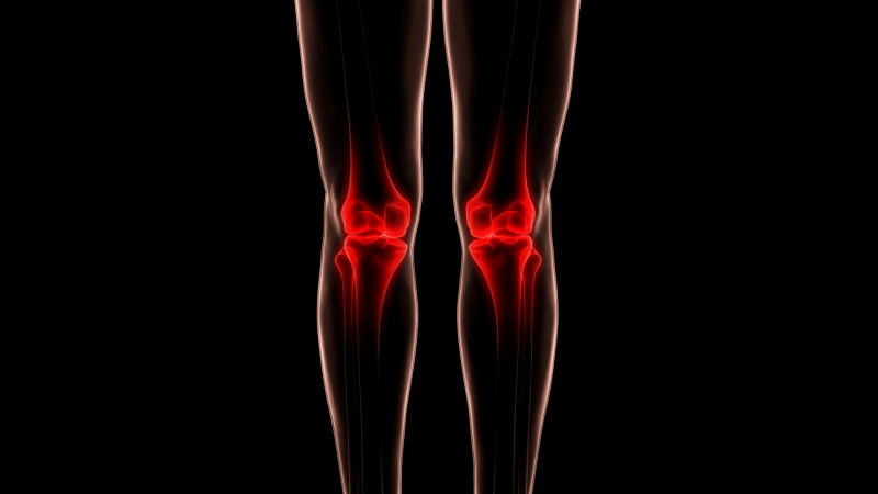 Osteoarthritis blog picture